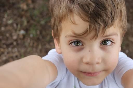 Nei bambini ci sono alcuni segnali da non trascurare: vis pallido e occhiaie sono tra questi.